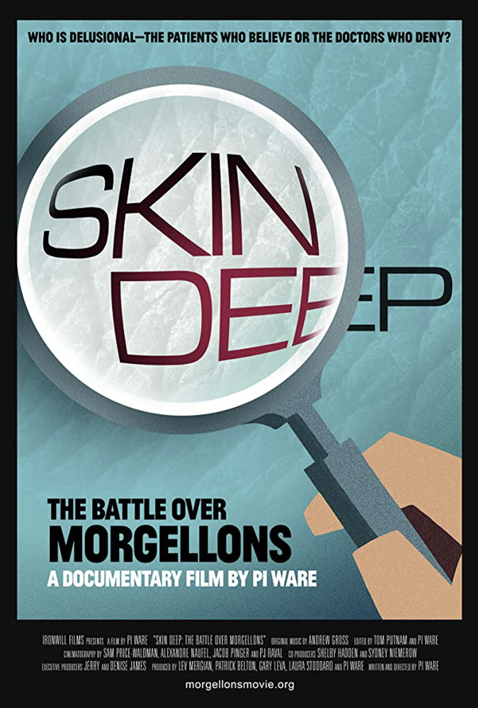 Skin Deep: The Battle Over Morgellons Image